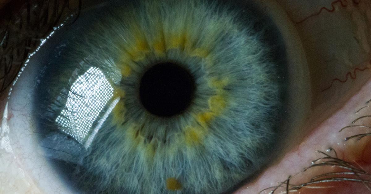 Google запатентовала электронные линзы, которые устанавливаются инъекцией в глаз